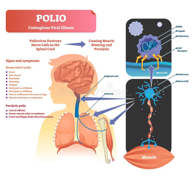 Poliomyelitisvektorillustration Beschriftete medizinische Virusinfektionssymptome entwerfen lizenzfreie abbildung