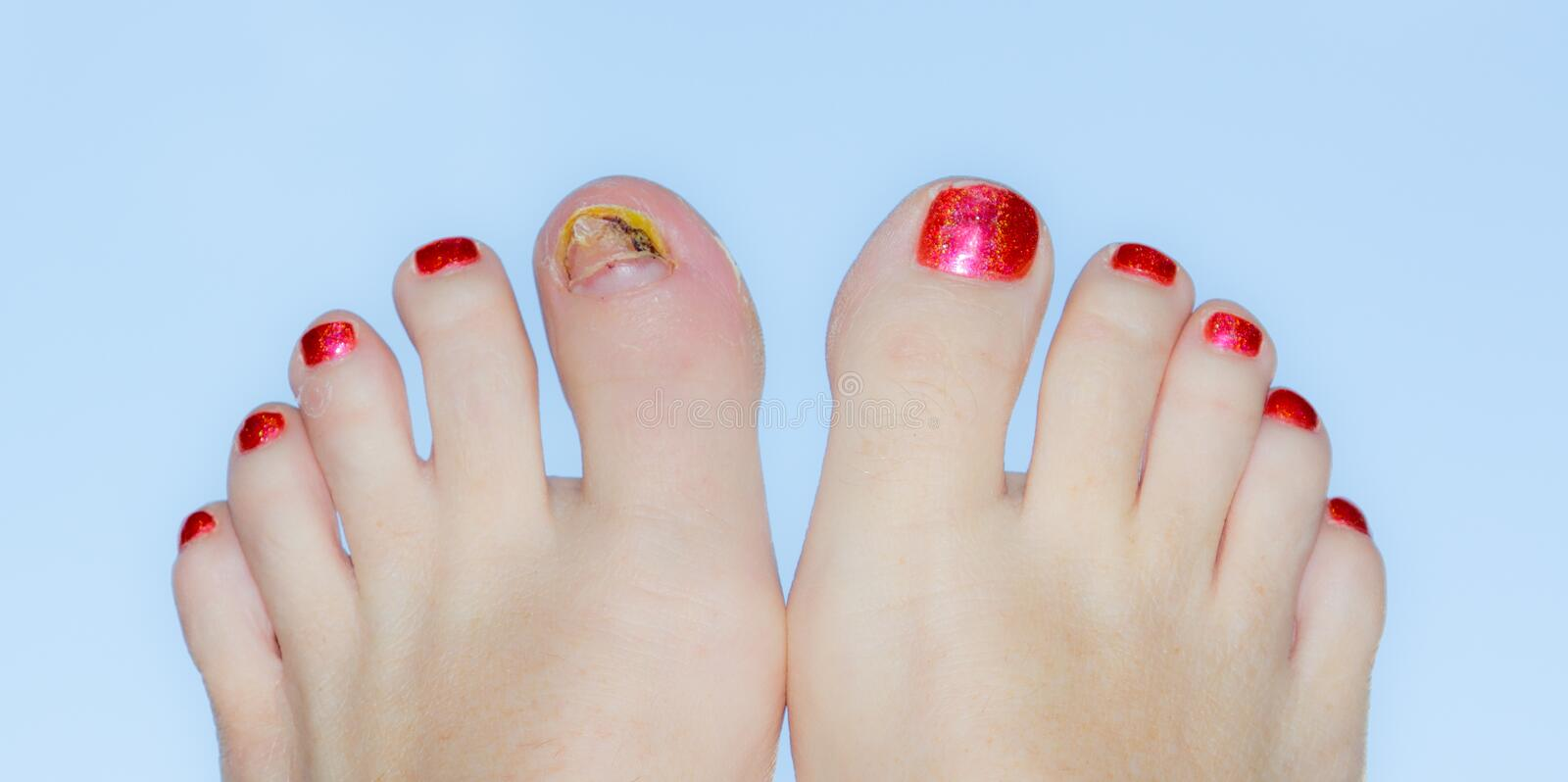 Download Polished toes with injury stock image. Image of damage - 28828673