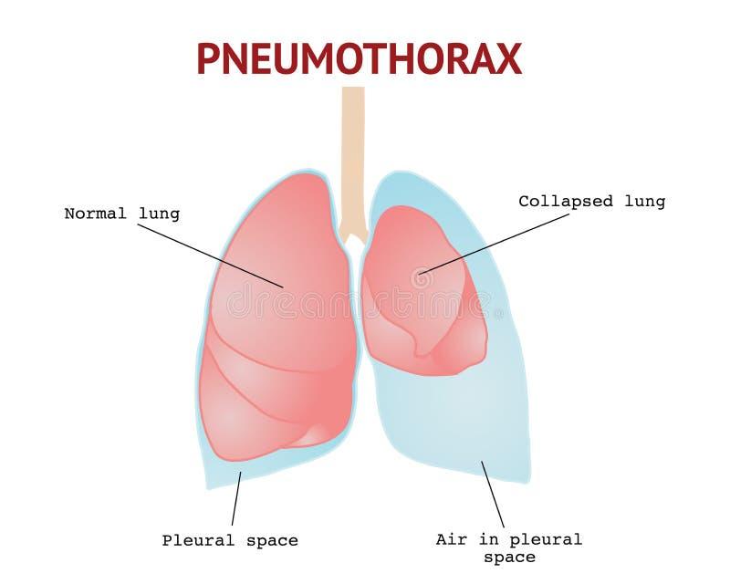 Polmone crollato o pneumotorace, affezione polmonare, illustrazione isolata di vettore su fondo bianco royalty illustrazione gratis
