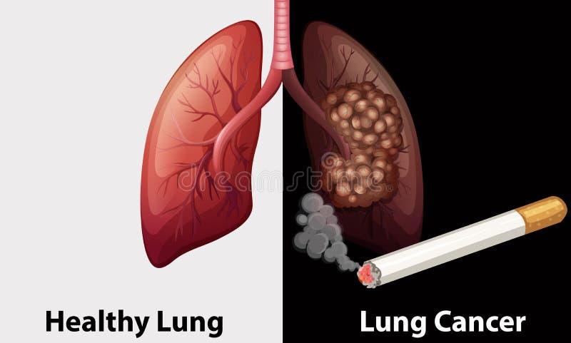Polmone sano contro il diagramma del cancro polmonare illustrazione di stock