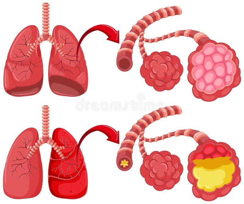 Polmoni umani con polmonite illustrazione vettoriale