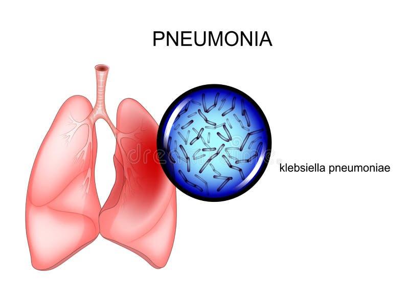 polmonite agente causativo - klebsiella royalty illustrazione gratis