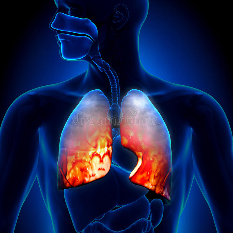 Polmonite - stato infiammatorio dei polmoni - anatomia illustrazione di stock
