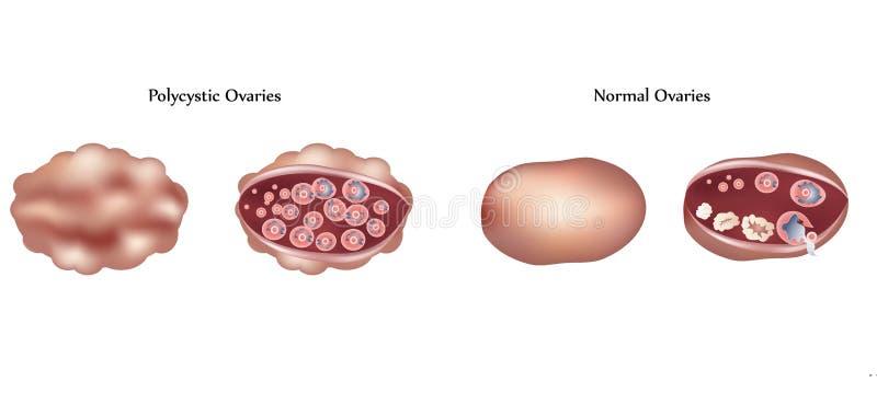 Polycistic Eierstöcke und normale Eierstöcke stock abbildung
