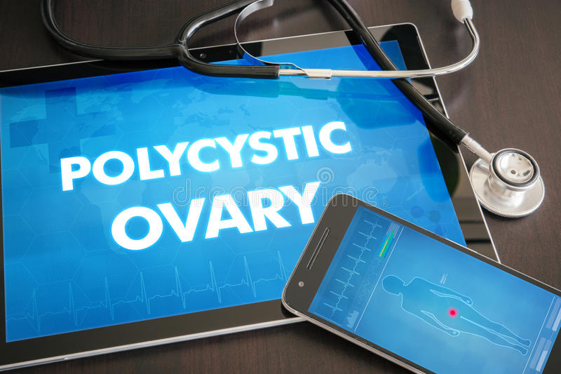 Polycystic ovary (endocrine disease related) diagnosis medical c. Oncept on tablet screen with stethoscope stock photo