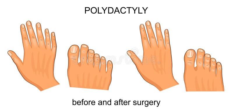 Polydactyly avant et après la chirurgie illustration libre de droits