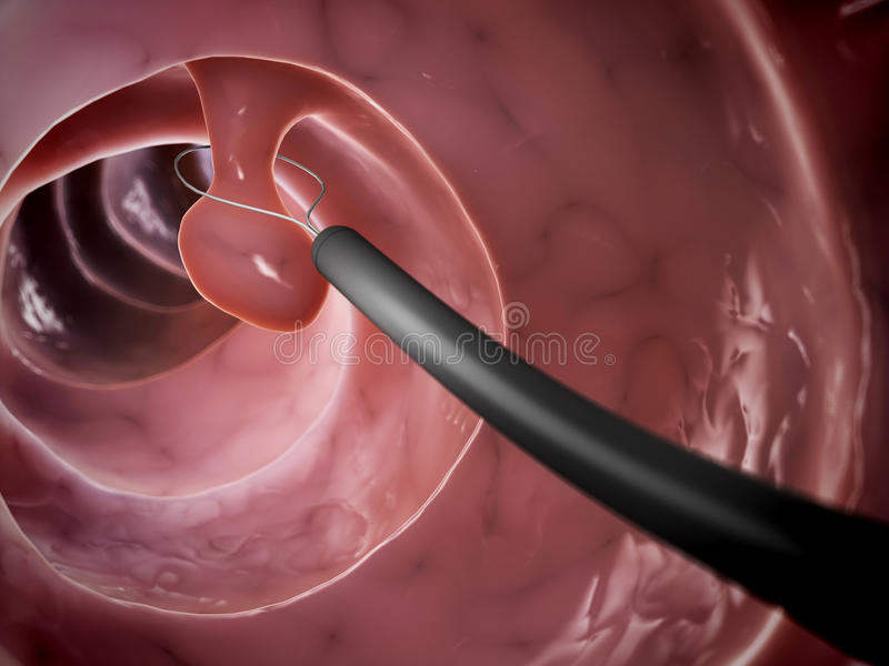 Polyp removal stock illustration