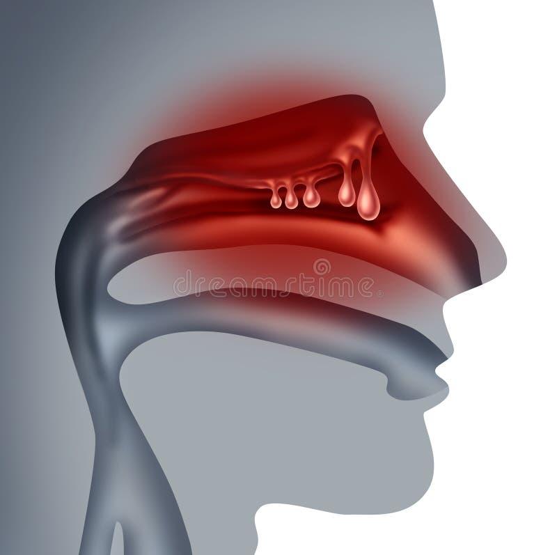 Polypes nasaux illustration de vecteur