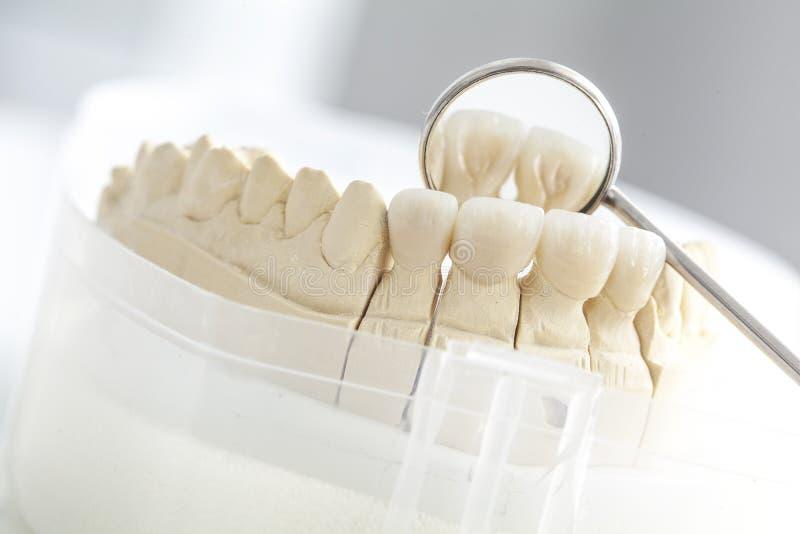 Pont en céramique sur le modèle de plâtre photo stock