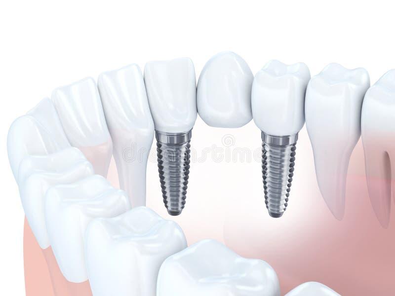 Pont en implant dentaire illustration libre de droits