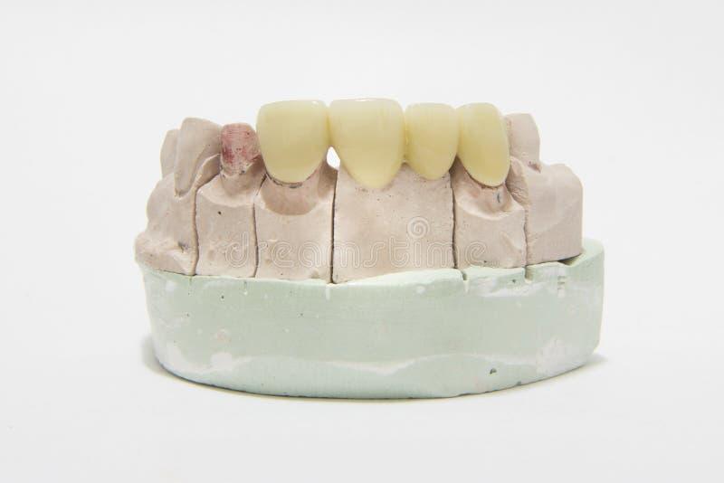 Pont et couronne dentaires fortement esthétiques tout en céramique sur le modèle photographie stock libre de droits