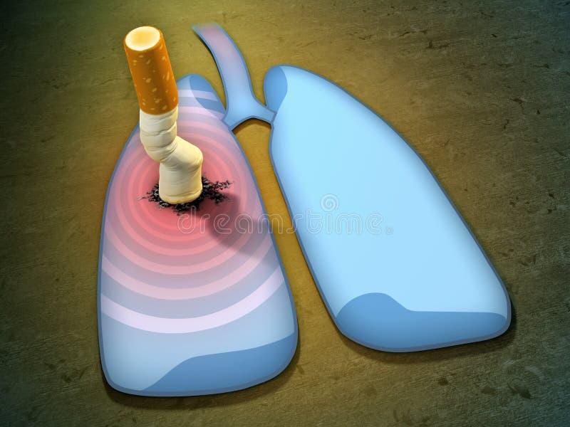 Ponta de cigarro e pulmões ilustração stock