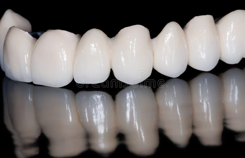 Ponte dental imagens de stock