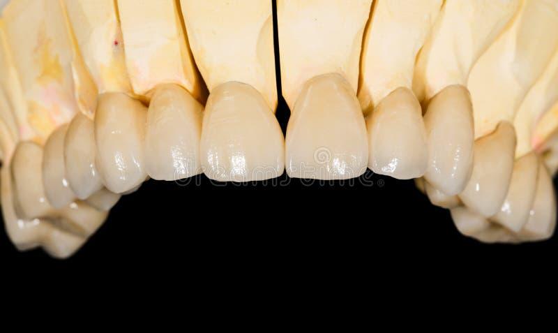 Ponte ceramico dentario fotografia stock libera da diritti