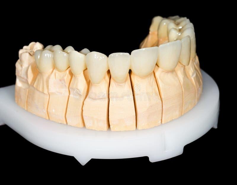 Ponte ceramico dentario fotografia stock