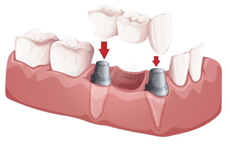 Ponte dental ilustração stock