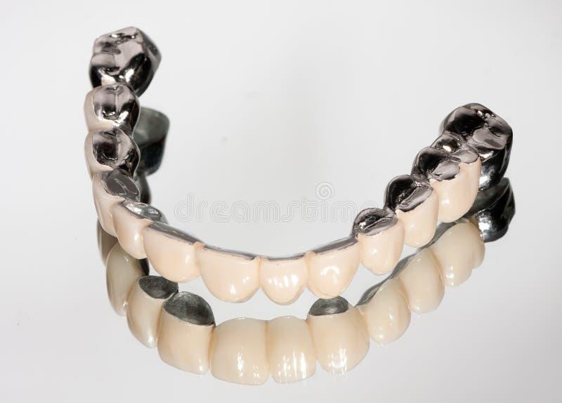 Ponte dental imagem de stock