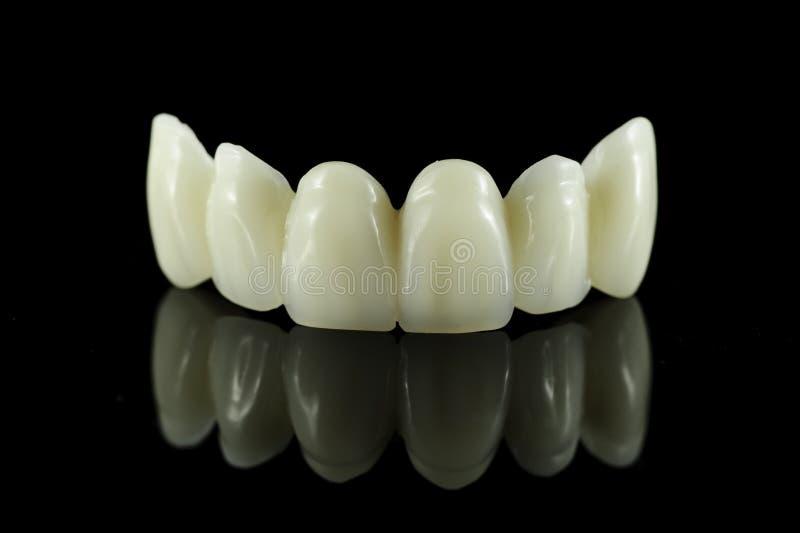 Ponte dental do dente fotografia de stock