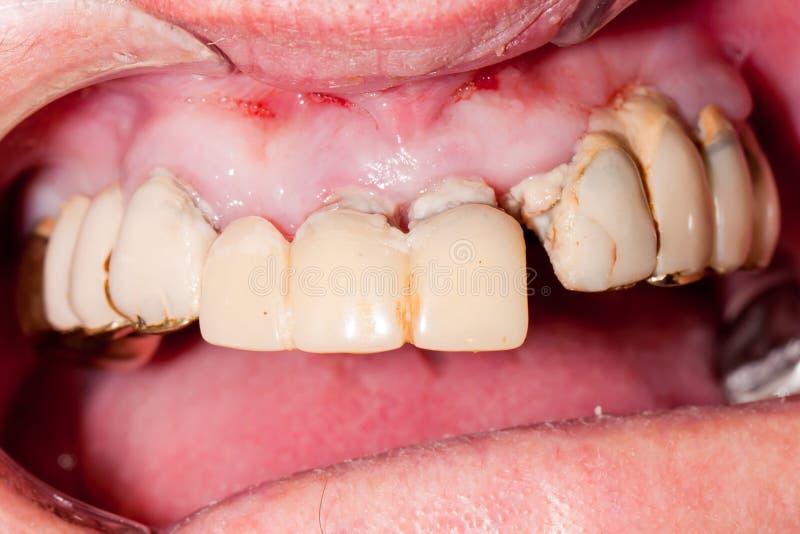 Ponte dental muito velha fotos de stock royalty free