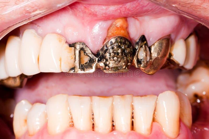 Ponte dental muito velha fotos de stock