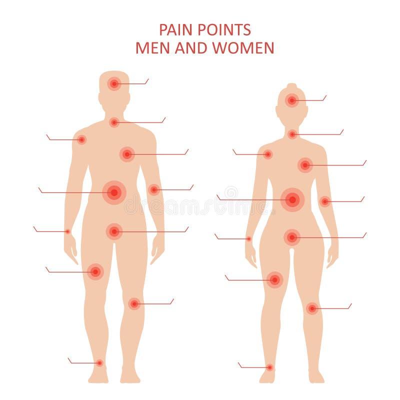 Pontos da dor no corpo masculino e fêmea ilustração do vetor