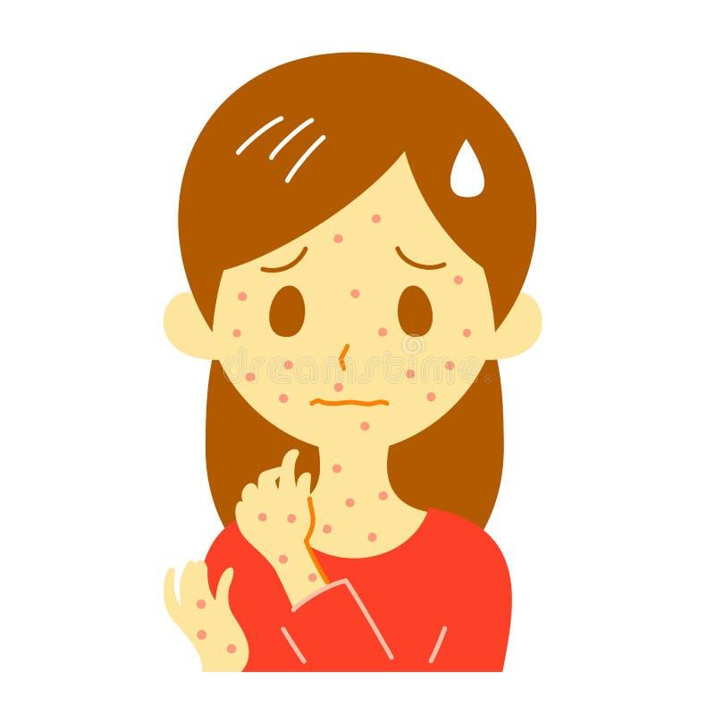 Pontos vermelhos, precipitação, mulher ilustração royalty free