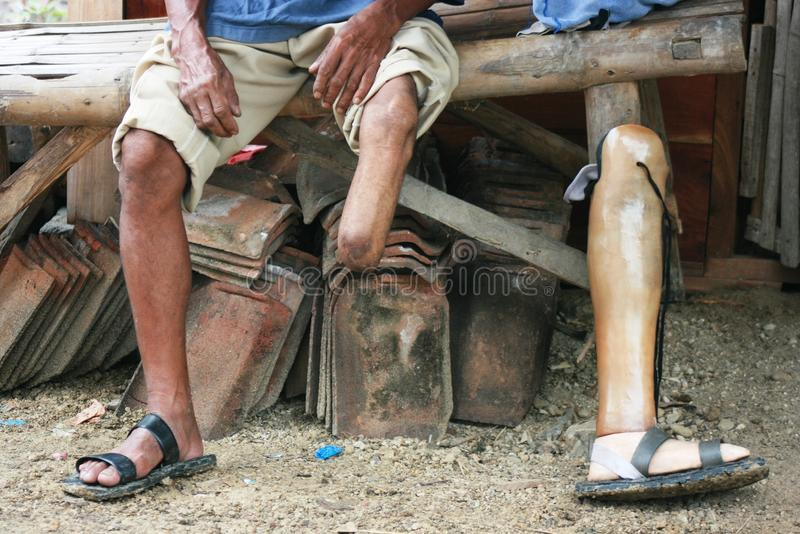 Poor disabled people. In Indonesia who lost his leg stock photo