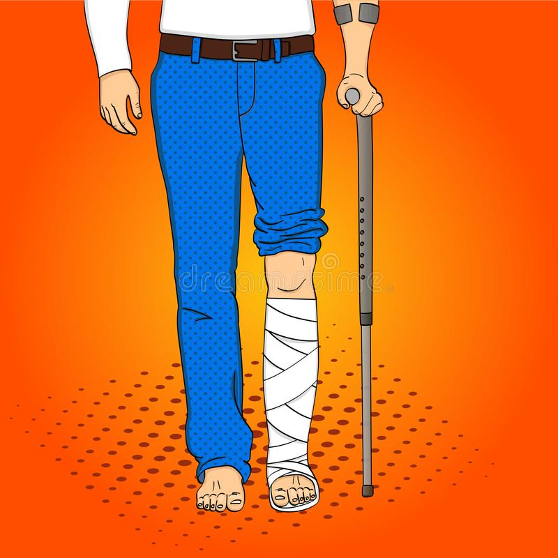 Pop art men legs in plaster, cane and support. Rehabilitation means. Vector imitation comic style. Pop art men legs in plaster, cane and support. Rehabilitation vector illustration
