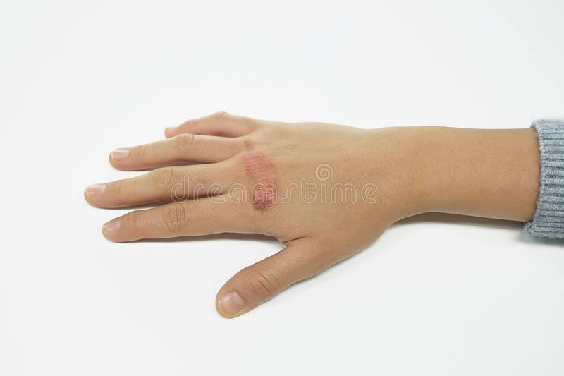 Poparzona ręka kobieta z urazem wrzącej wody oparzenie zdjęcia stock