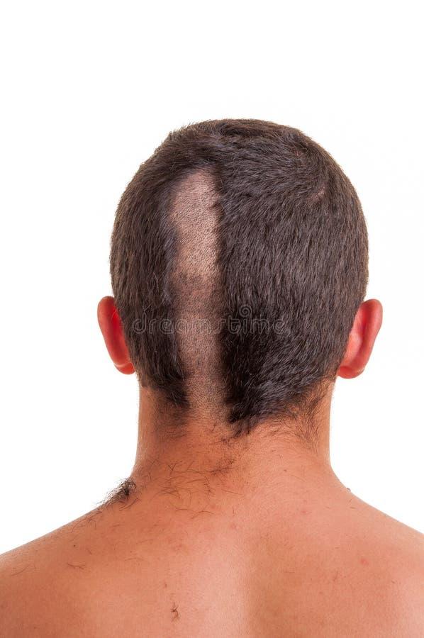 Popiera mężczyzna głowa podczas gdy jego włosy ciie zdjęcie stock