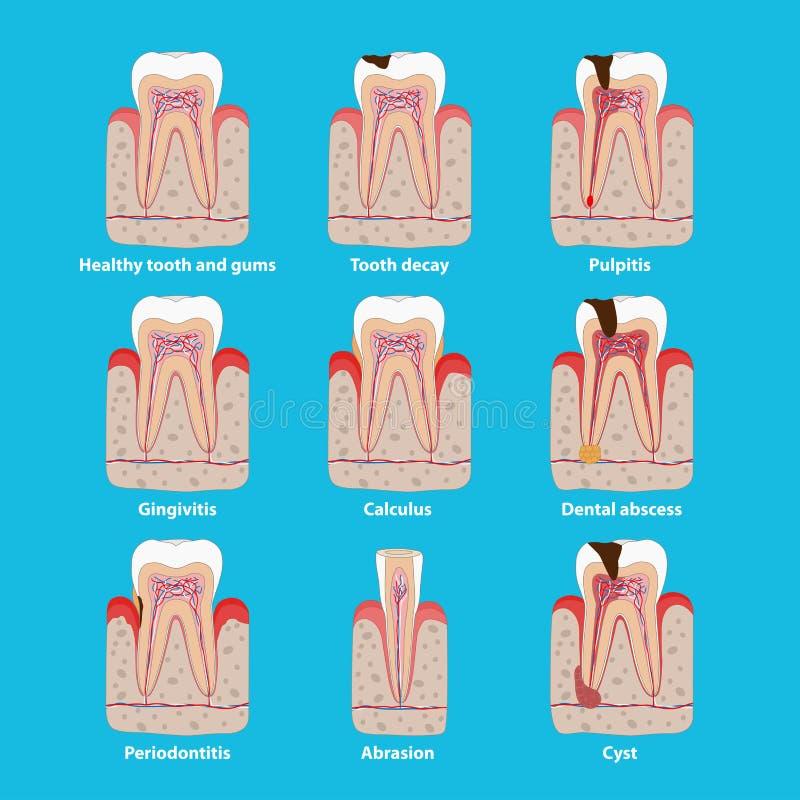 Populäre Zahnkrankheitsikonen im flachen Entwurf, medizinische Illustration des Vektors Infographic Elemente der zahnmedizinische vektor abbildung