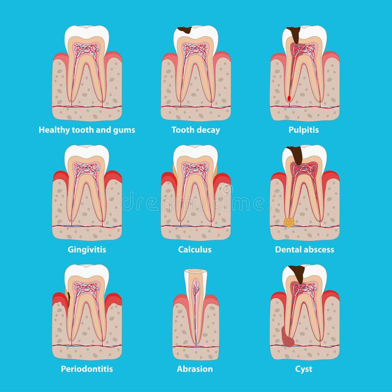Popular teeth diseases icons in flat design, vector medical illustration. Dental problems infographic elements isolated. Healthy and unhealthy teeth, tooth vector illustration