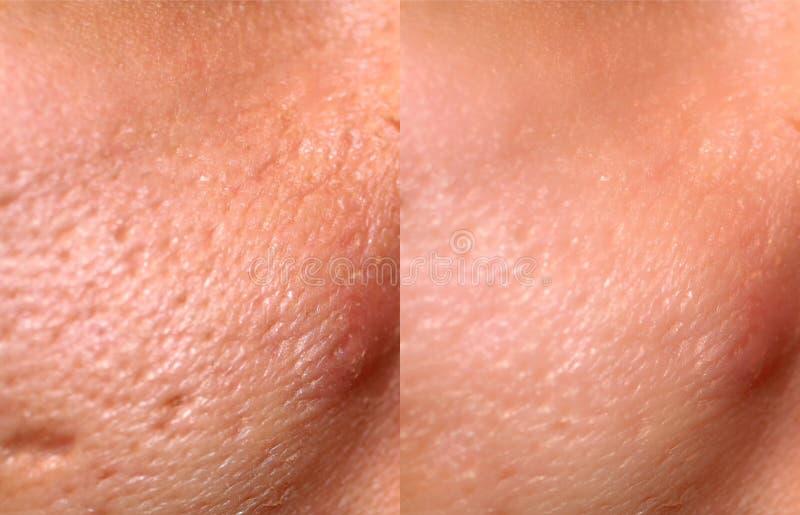 Porównanie skóry przed i po wytworzeniu laserowym Skóra z trądzikiem, blizny trądziku, powiększone pory fotografia royalty free