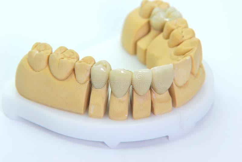 Porcelain teeth stock photo