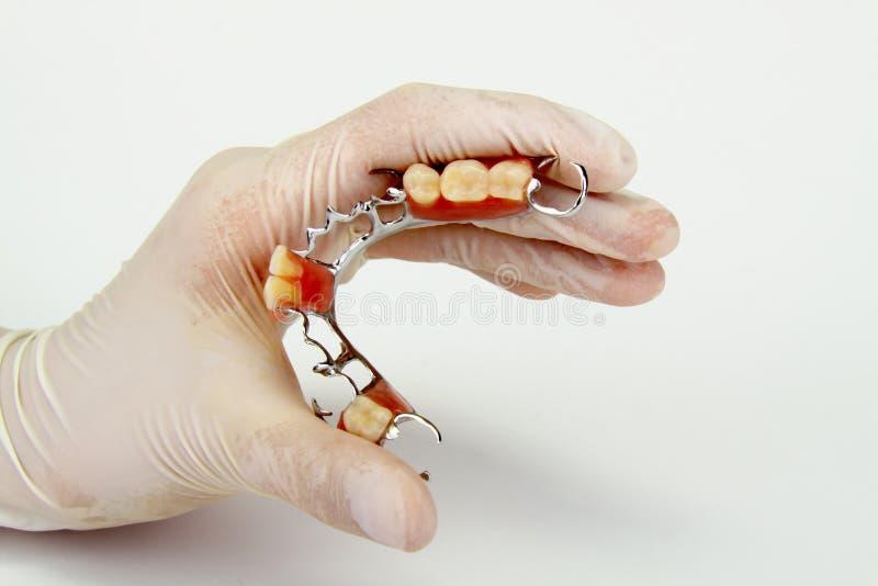 A porcelana coroa, constrói uma ponte sobre (odontologia), placa dental imagem de stock