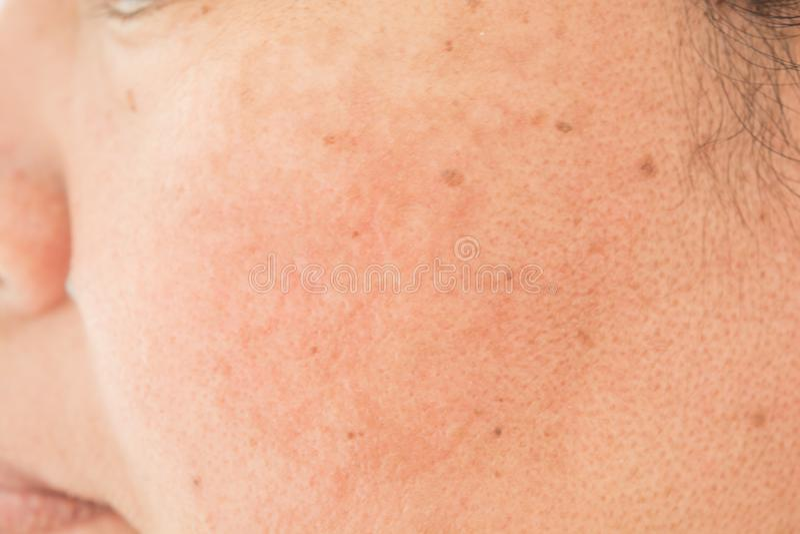 Poren auf dem Gesicht in den Frauen stockfotografie