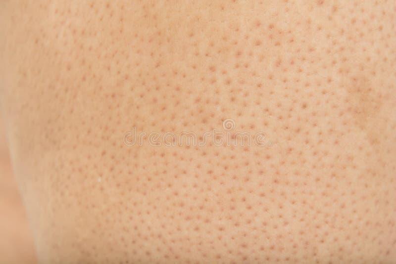 Poren auf dem K?rper in den Frauen lizenzfreie stockfotografie