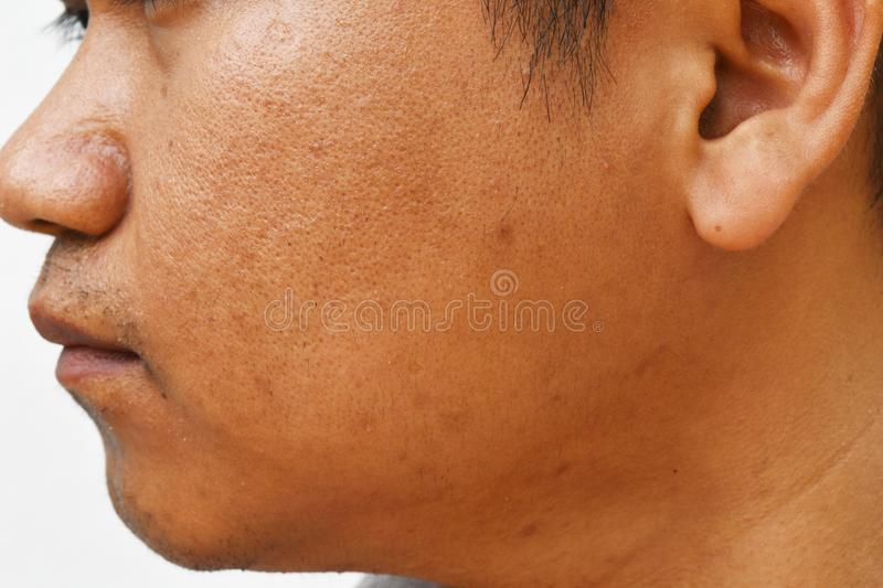 Pores and oily on surface young asian man face skin do not take care for a long time royalty free stock photography