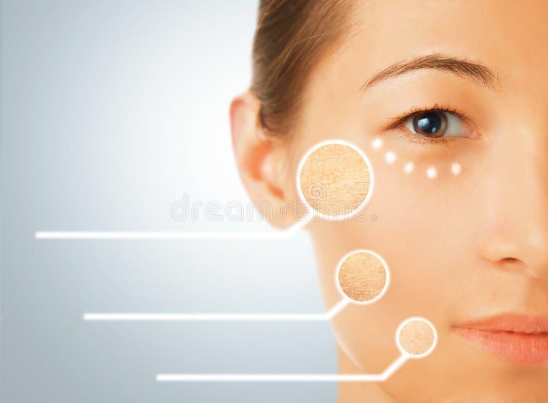 Porträt der Frau mit trockenen Teilen Gesichtshaut lizenzfreie stockfotografie