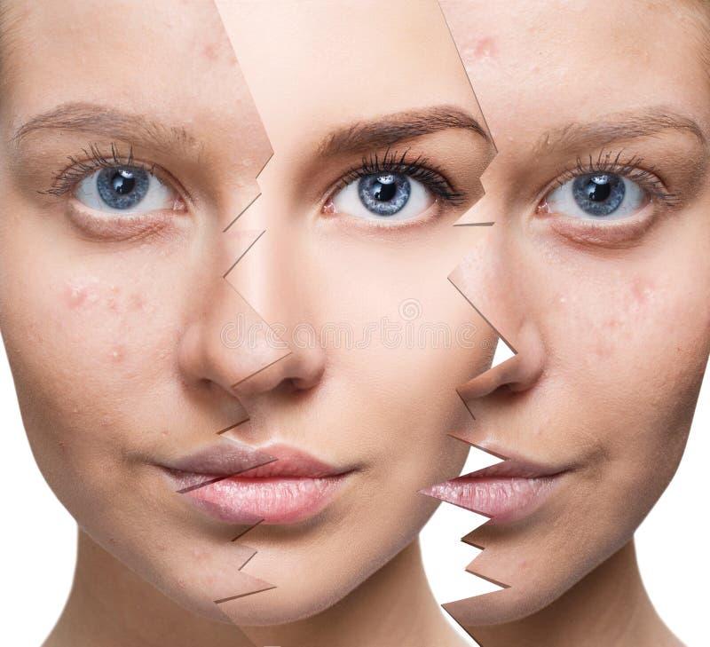 Porträt der Frau vor und nach Akne stockbild