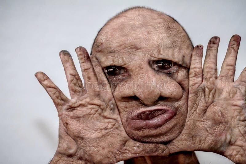 Porträt des hässlichen, widrigen, schrecklichen und entstellten Mannes mit gebrannter Haut, abstoßendes Monster, Freak der Natur lizenzfreies stockbild