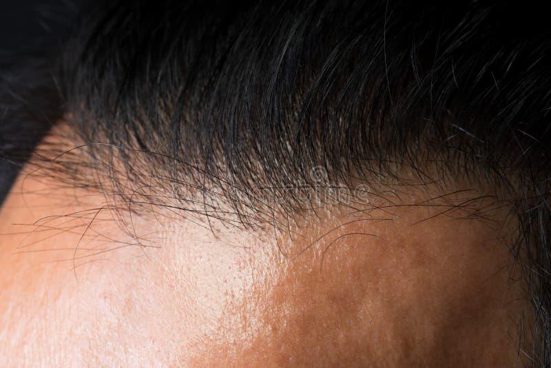 Porträt des männlichen Haarkopfteils kahl lizenzfreies stockbild
