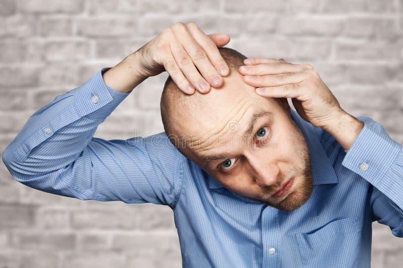 Porträt eines kahlen Mannes, der seinen kahl werdend Kopf mit einem kurzen Haarschnitt in einem blauen Hemd betrachtet Haartransp stockfotografie