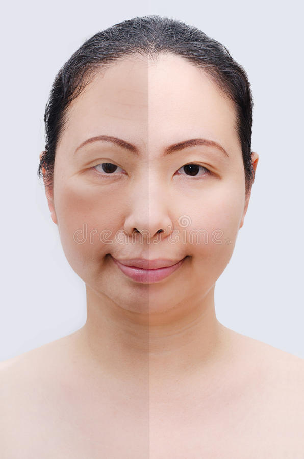 download portrait of asian woman before and after botox stock photo image of face