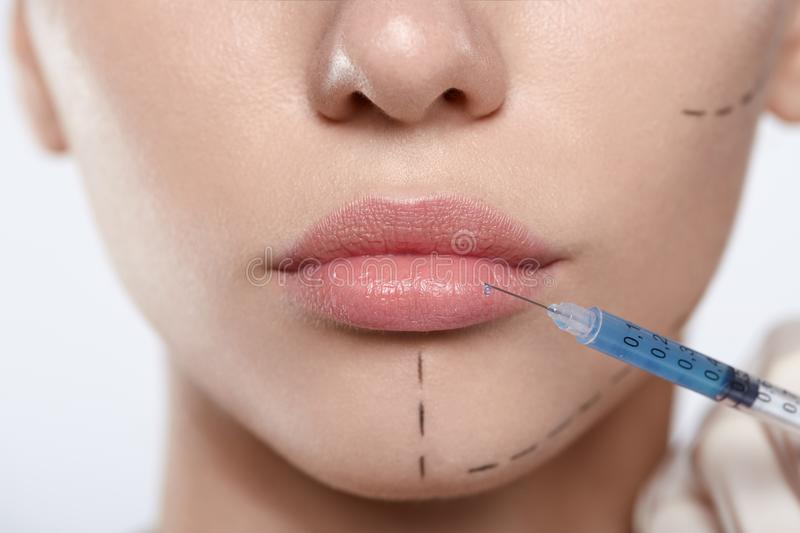 Close up portrait of attractive woman with plastic surgery dashed line lips and syringe stock images