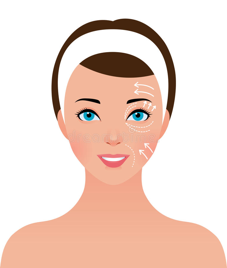 Portrait of beautiful girl with perforations on the face for plastic surgery stock illustration