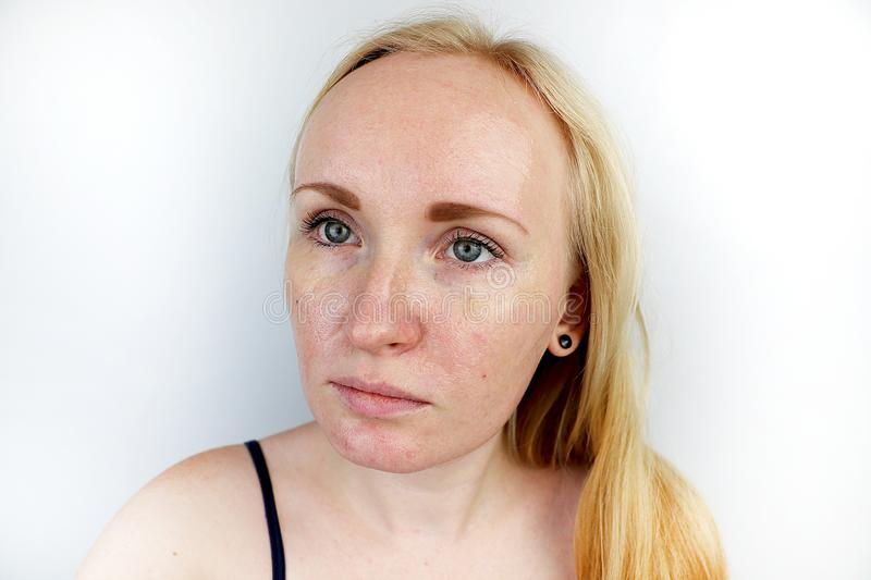 Oily and problem skin. Portrait of a blonde girl with acne, oily skin and pigmentation stock image