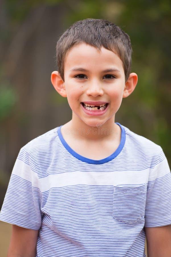Portrait boy missing milk tooth outdoor stock image