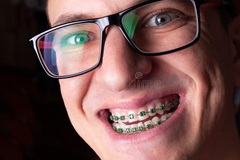 Portrait d'un homme avec le plan rapproché de dents tordues et de parenthèses en métal Jeune homme avec les accolades orthodontiq image stock