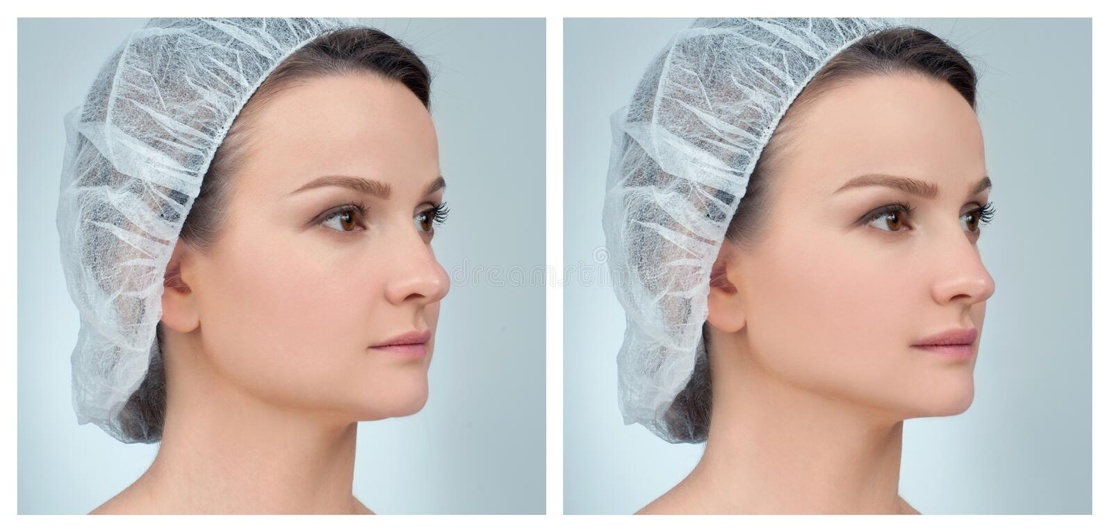 Portrait of female face, before and after rhinoplasty royalty free stock images